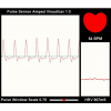 Heart Rate Pulse Sensor